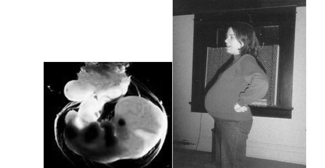 Left: 6-week embryo. Right: Rachel MacNair in 1985